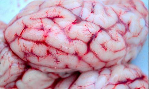 Фото №1 - Врачи клиники «Шарите» раскрыли механизм проникновения COVID-19 в мозг
