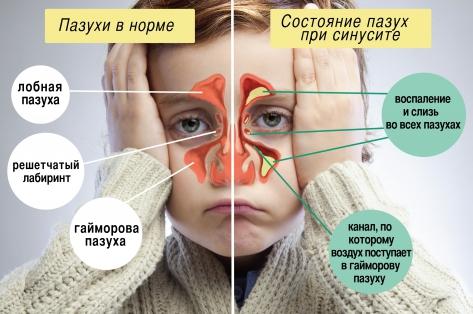 Гайморит симптомы и лечение у детей