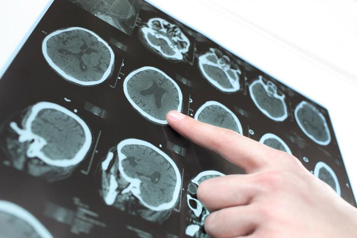 shutterstockСлово «нерв» восходит к латинскому nervus («ж´ила»). А родственная ему форма «невр» имеет греческое происхождение. По-гречески «нерв» или «ж´ила» – neuron.
