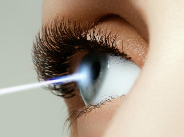 Фото №4 - 10 мифов и фактов о лазерной коррекции зрения