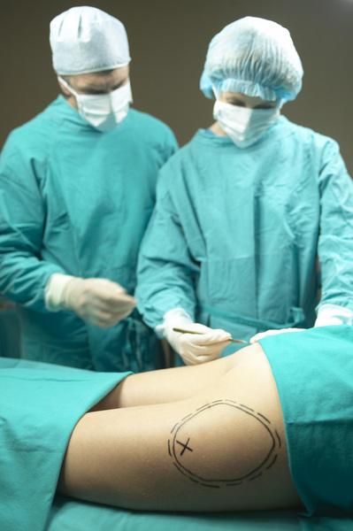 Фото №1 - Девушке потребовалось экстренное лечение после операции по увеличению ягодиц