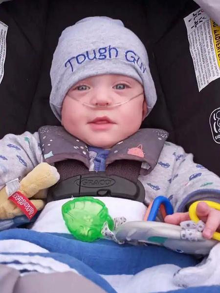 Фото №2 - Малыш, которому дали ноль шансов на выживание при родах, отпраздновал первый год жизни