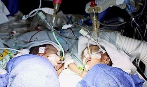 Фото №1 - В Швейцарии разделили самых маленьких сиамских близнецов