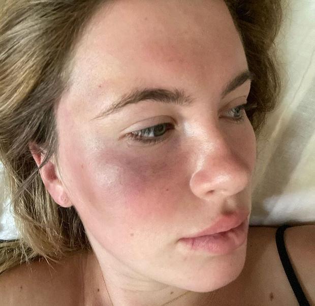 Фото №1 - Избита женщиной! Дочь Ким Бесинджер стала жертвой ограбления