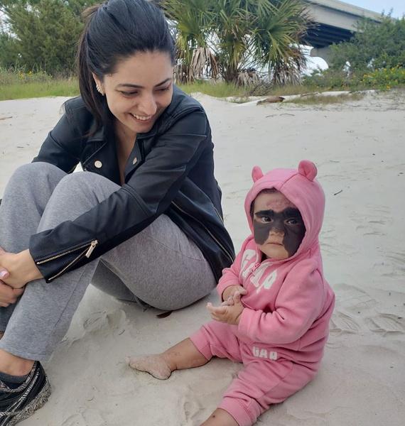 Фото №1 - «Люди говорили, что она уродливая и заразная»: мама девочки с «пятном Бэтмена» на лице о воспитании и лечении дочери