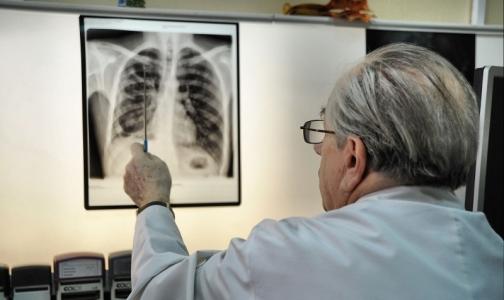 Фото №1 - Пациенты петербургских клиник оказались в группе риска по туберкулезу