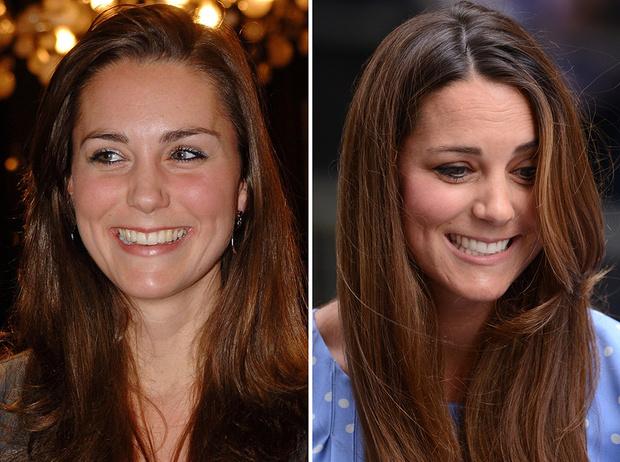 Фото №2 - Королевы и пластика: как меняли внешность коронованные особы
