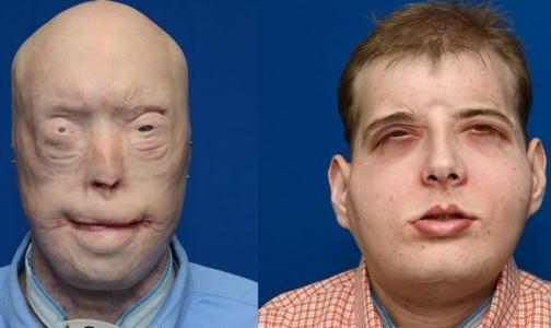 Фото №1 - Американские хирурги сделали сложнейшую пересадку лица