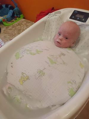 Фото №5 - Из-за редкой болезни мальчика принимают за жуткую куклу