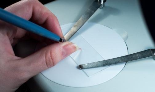 Фото №1 - Студенты СПбГУ создали экспресс-тест на содержание в организме макроэлементов