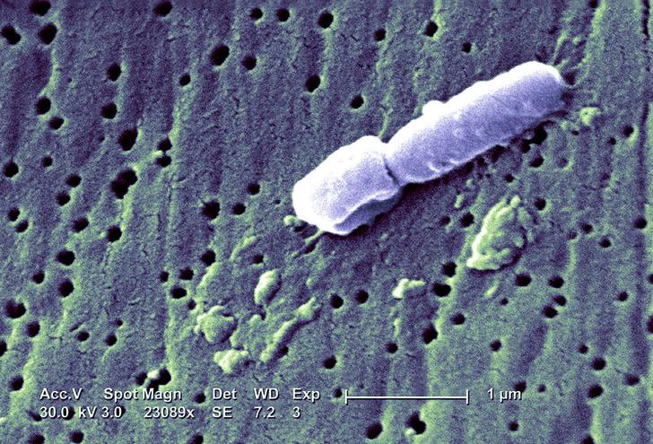 Фото №1 - У пациентов в Техасе обнаружены неизвестные супербактерии