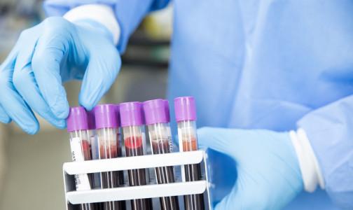 Фото №1 - Тест на рак. В НМИЦ онкологии им. Петрова рассказали, могут ли онкомаркеры обнаружить болезнь до появления симптомов