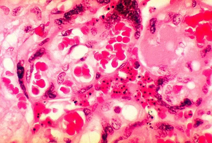 Фото №1 - Обнаружен новый способ диагностики малярии