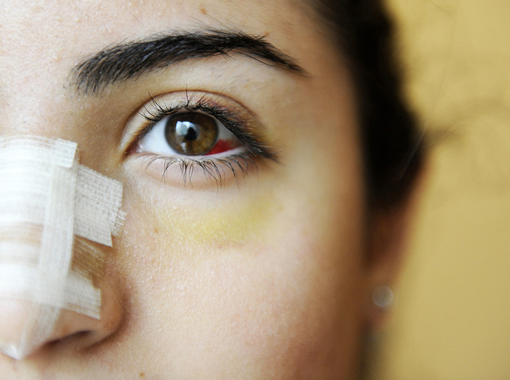 Фото №2 - Культ красоты: почему все девочки-подростки в Ливане делают ринопластику