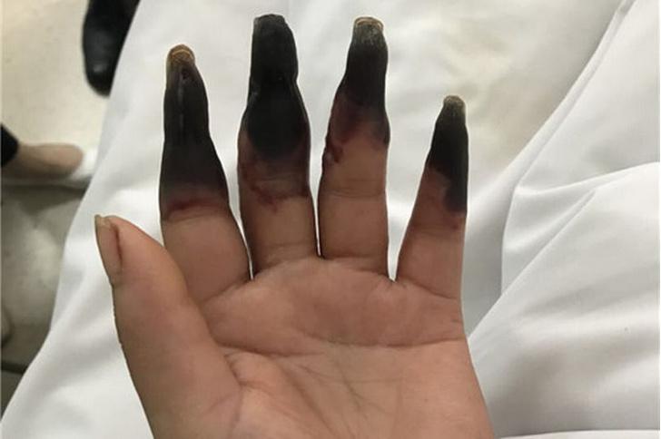 Фото №1 - Немного треша: после уборки женщина чуть не лишилась рук