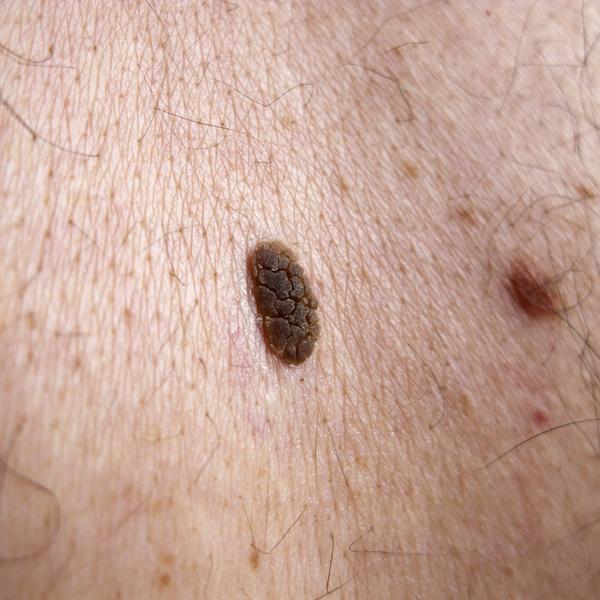 Fórum papilom, HPV fertőzés