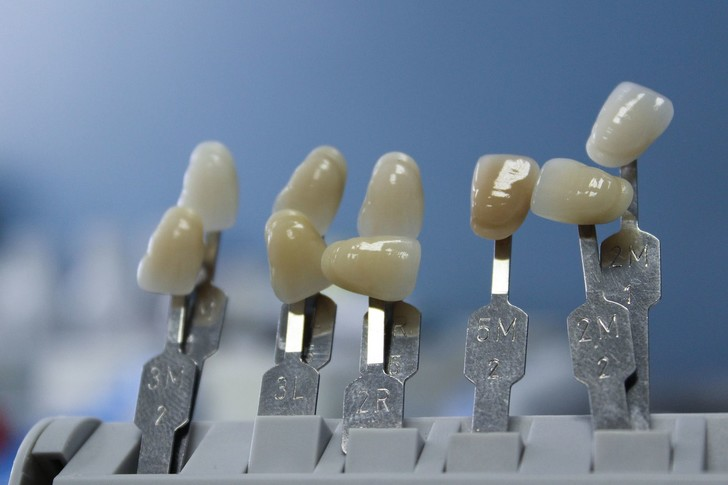 Фото №4 - «Только 52 зуба нам даются бесплатно». Современные возможности протезирования и имплантации