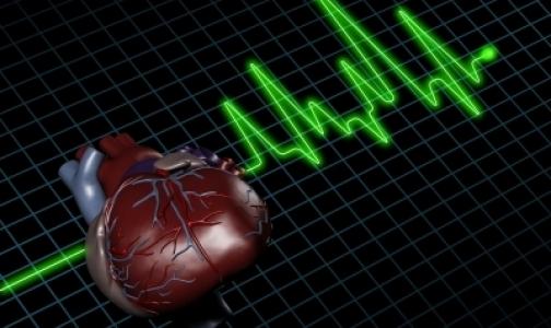 Фото №1 - Cколько стоят инфаркты миокарда в России