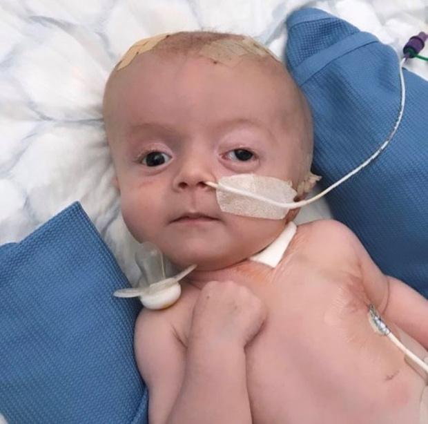 Фото №1 - Новорожденному сделали 11 операций на мозге за 10 месяцев