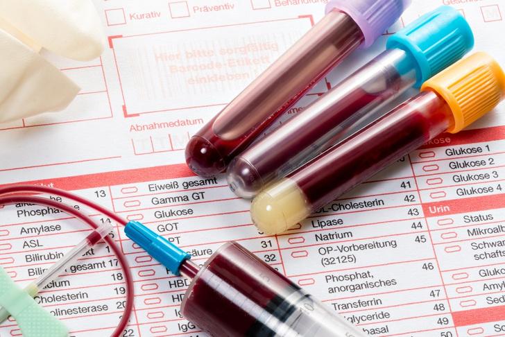 Фото №1 - Анализ крови может определить срок жизни человека