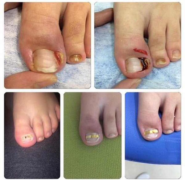 Фото №1 - Как эффективно решить проблему вросшего ногтя?