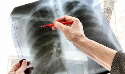 Фото №1 - Петербургские врачи назвали мигрантов причиной роста заболеваемости детей туберкулезом