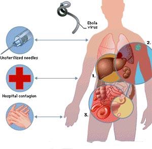 Фото №1 - В Конго вспышка лихорадки Эбола