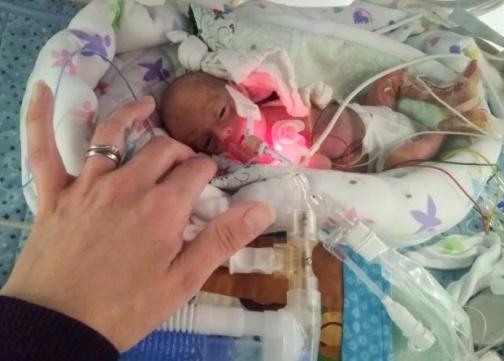 Женщина родила самых маленьких близнецов в мире