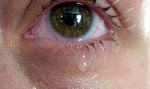 Фото №1 - Ожоги глаз