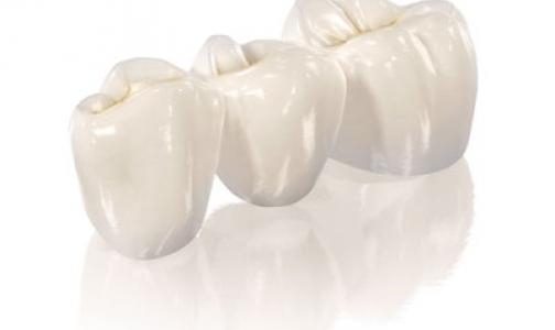 Фото №1 - Сколько в Петербурге стоматологов, и где они находят столько зубов?