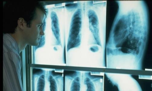 Фото №1 - У петербуржцев начали искать рак без записи и очереди