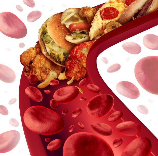 Фото №1 - Повышенный холестерин может «передаваться» по наследству