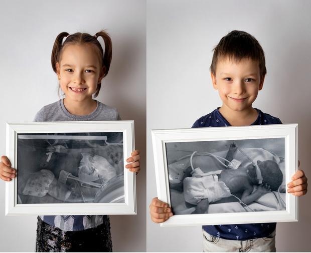 Фото №2 - Недоношенные детки сразу после рождения и спустя годы: фото