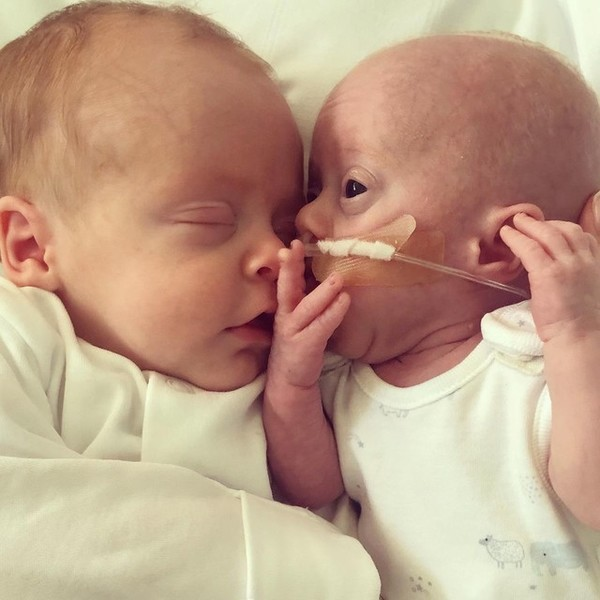 Фото №4 - Малыш весом 450 г выжил благодаря объятиям брата-близнеца