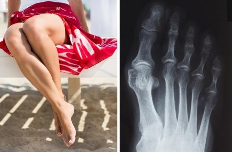 Косточка на ноге: как от нее избавиться