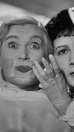 Фото №5 - Операция «Улыбка Моны Лизы»: как поднять опущенные уголки губ, чтобы выглядеть моложе