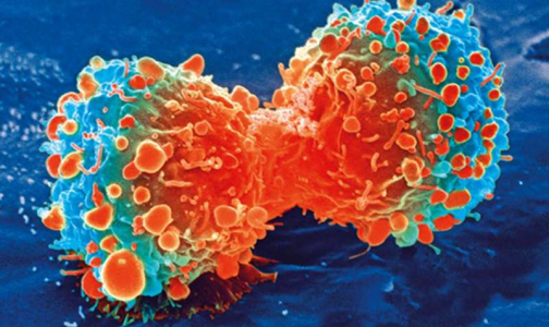 Фото №1 - Ученые: Один ген помогает раковым клеткам долго оставаться незамеченным