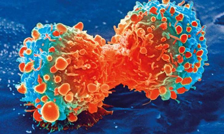 Фото №1 - Ученые раскрыли механизм формирования раковых заболеваний