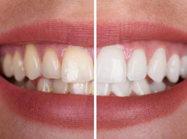 Фото №3 - Маркер здоровья: о чем может рассказать цвет зубов
