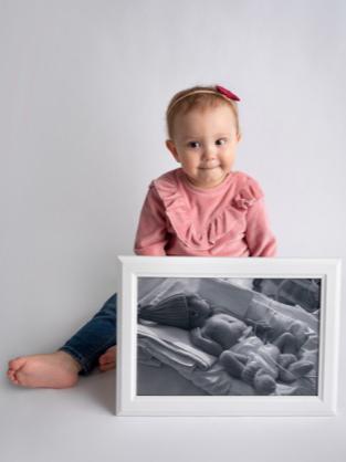 Фото №14 - Прирожденные бойцы: 14 историй детей, родившихся раньше срока