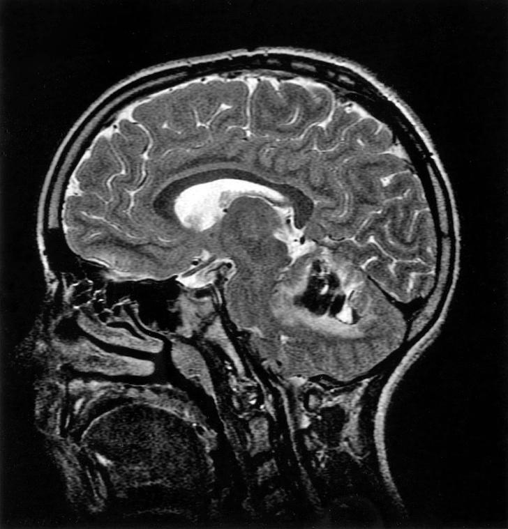 Фото №1 - Обнаружены различия между мужским и женским мозгом