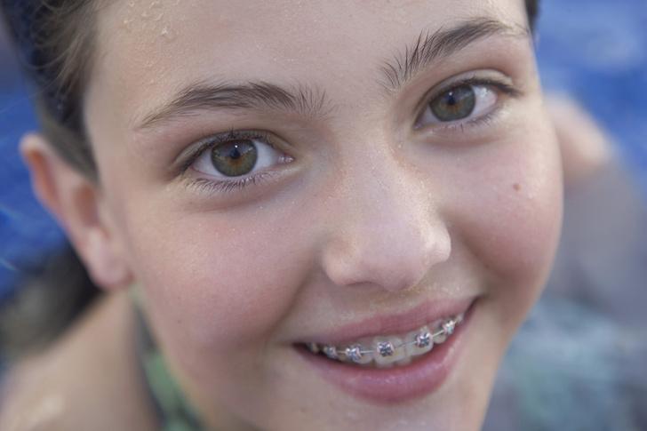 Фото №4 - 8 наивных вопросов про детские зубки
