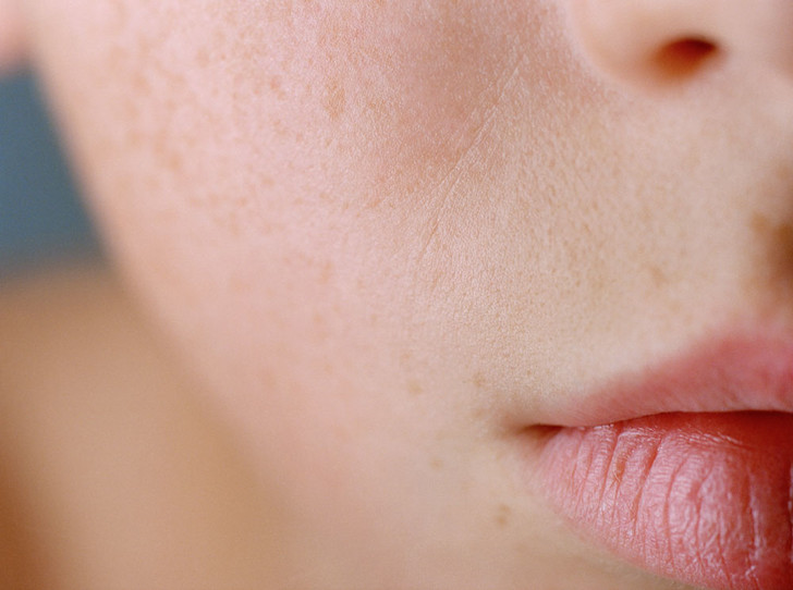 Фото №5 - Почему ваша кожа недовольна вашим меню (и что в нем изменить)