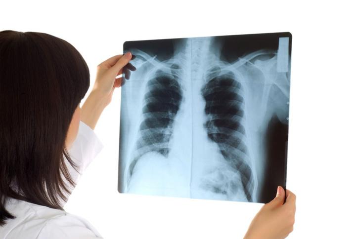 Фото №1 - Искусственный интеллект превзошел медиков в диагностике рака