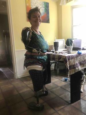 Фото №2 - Мать троих детей лишилась рук и ног из-за домашних родов