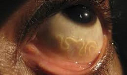 Фото №1 - Врачи удалили из глаза россиянки 8-сантиметрового червя-паразита