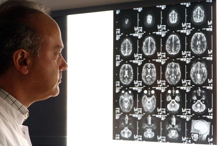 Фото №1 - Найдено главное отличие мозга убийцы