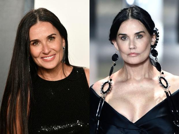 Звезды Голливуда до и после пластики лица фото