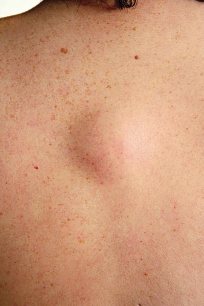 жировики под кожей