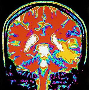 Фото №1 - Мозг восстановят после инсульта